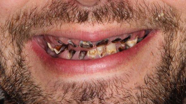 روزانہ کئی لیٹر سافٹ ڈرنک پینے والا دانتوں سے محروم