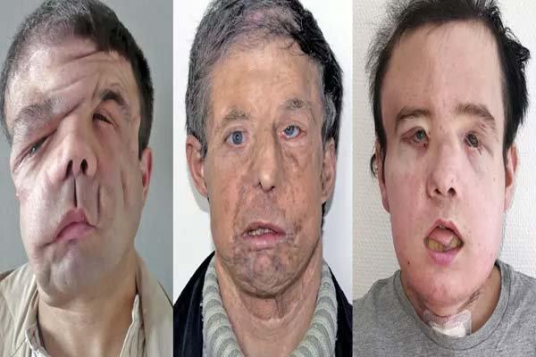 43 سالہ شخص کو 22 برس کے نوجوان کا چہرہ لگا دیا گیا