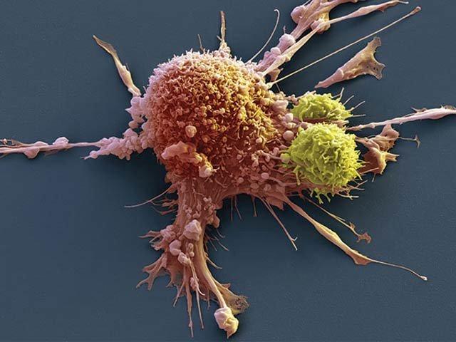 جسمانی نظام کو کینسر ختم کرنے کے قابل بنانے والی ویکسین کے حوصلہ افزا تجربات