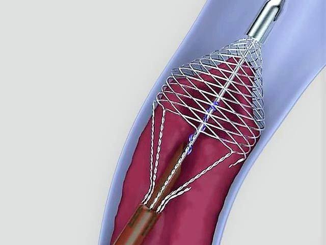 ٹوکری نما آلے کے ذریعے جسم سے خون کا لوتھڑا نکالنے کا کامیاب تجربہ