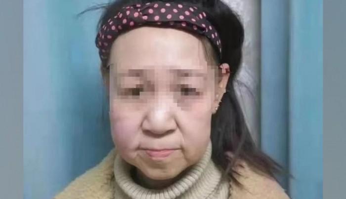 انوکھی بیماری نے 15 سالہ بچی کو بوڑھی خاتون بنا دیا