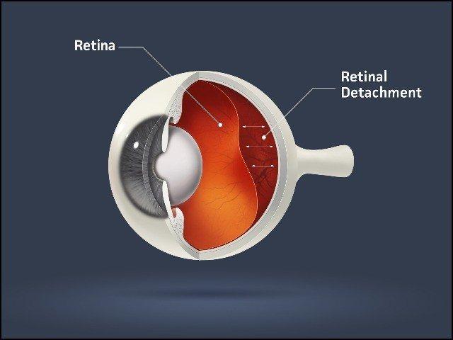 نینو ذرّات سے آنکھ کے پردے کی مرمت اور بینائی کی بحالی