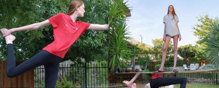 دنیا کی طویل ترین ٹانگوں والی لڑکی