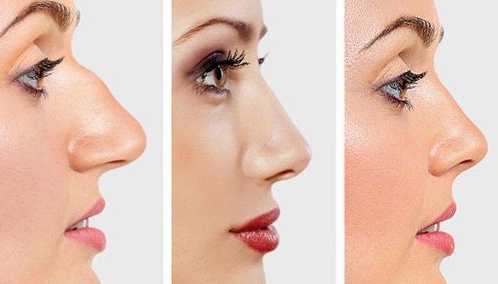 ناک کی بناوٹ آپ کے بارے میں کیا بتاتی ہے؟